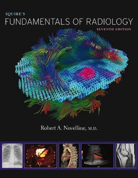 Boek cover Squires Fundamentals of Radiology: Seventh Edition van Robert A. Novelline (Hardcover)