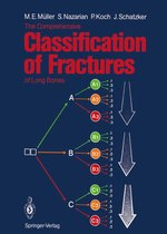 The Comprehensive Classification of Fractures of Long Bones